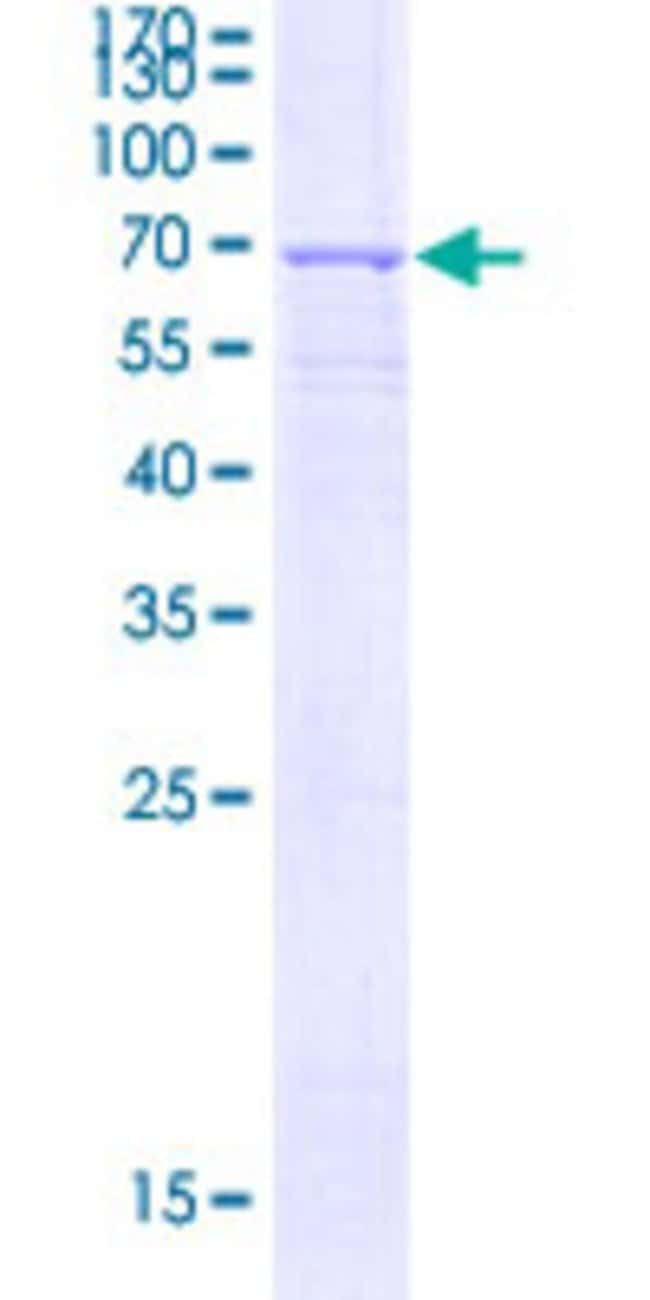 AbnovaHuman AGXT Full-length ORF (BAG37731.1, 1 a.a. - 392 a.a.) Recombinant