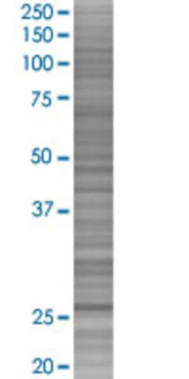 AbnovaAK3L2 293T Cell Transient Overexpression Lysate (Denatured) 100μL:Protein
