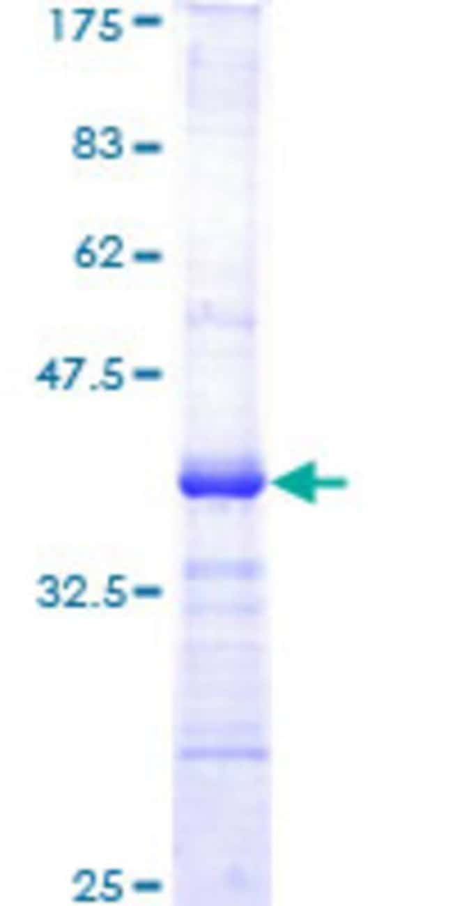 Abnova™ Human AKT1 Partial ORF (AAH00479, 381 a.a. - 480 a.a.) Recombinant Protein with GST-tag at N-terminal 10μg Abnova™ Human AKT1 Partial ORF (AAH00479, 381 a.a. - 480 a.a.) Recombinant Protein with GST-tag at N-terminal