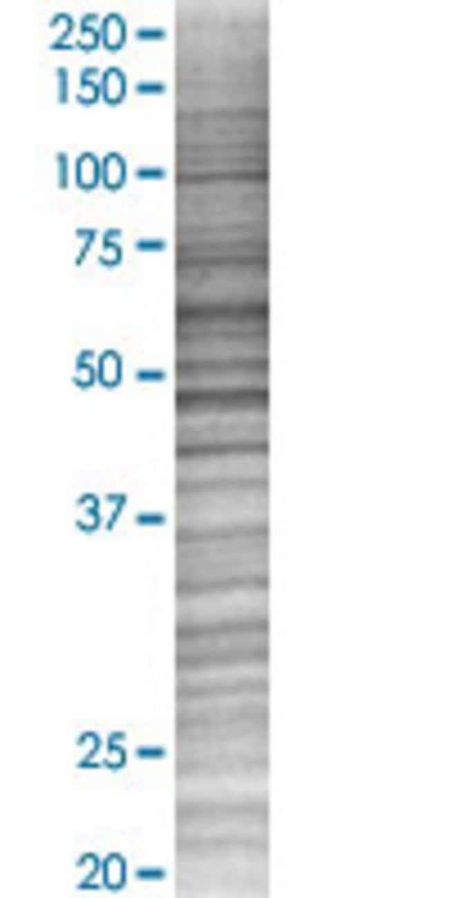 AbnovaAKT1 293T Cell Transient Overexpression Lysate (Denatured) 100μL:Protein