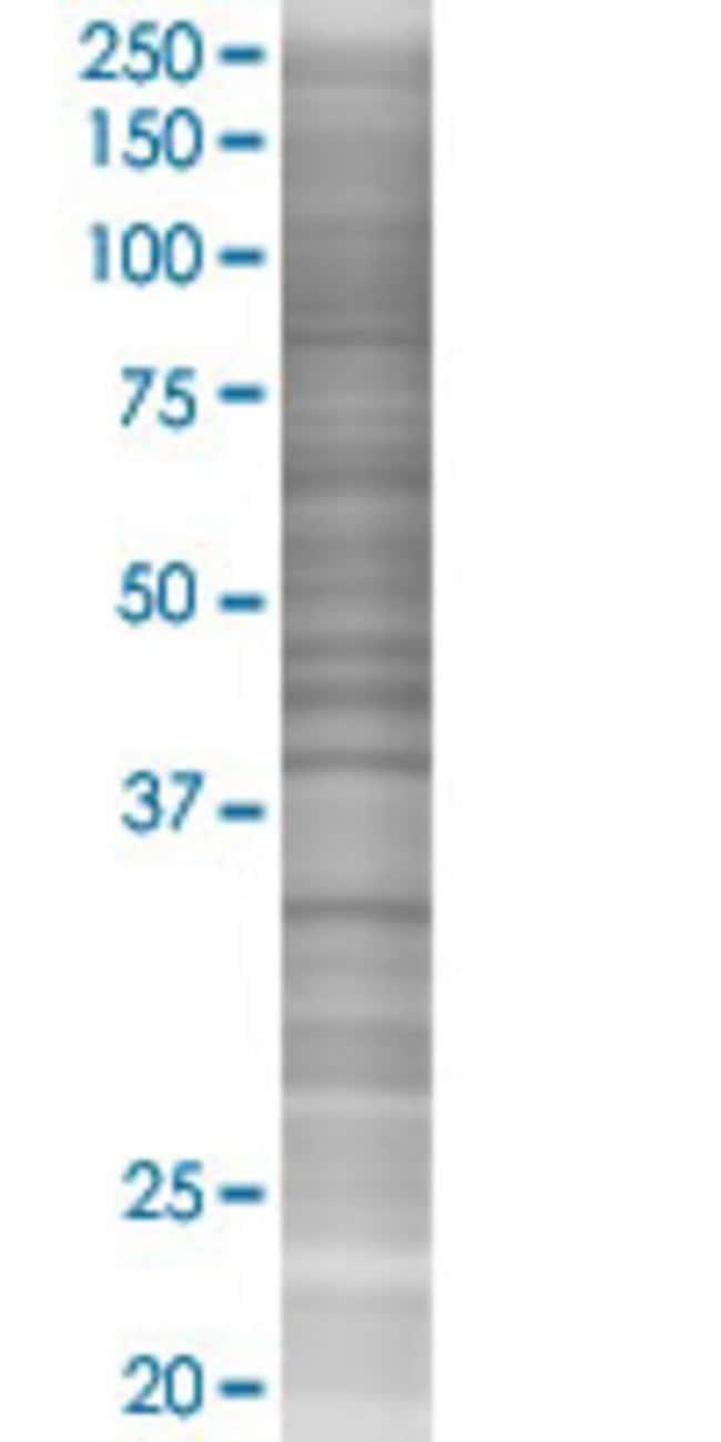 AbnovaALAD 293T Cell Transient Overexpression Lysate (Denatured) 100μL:Protein