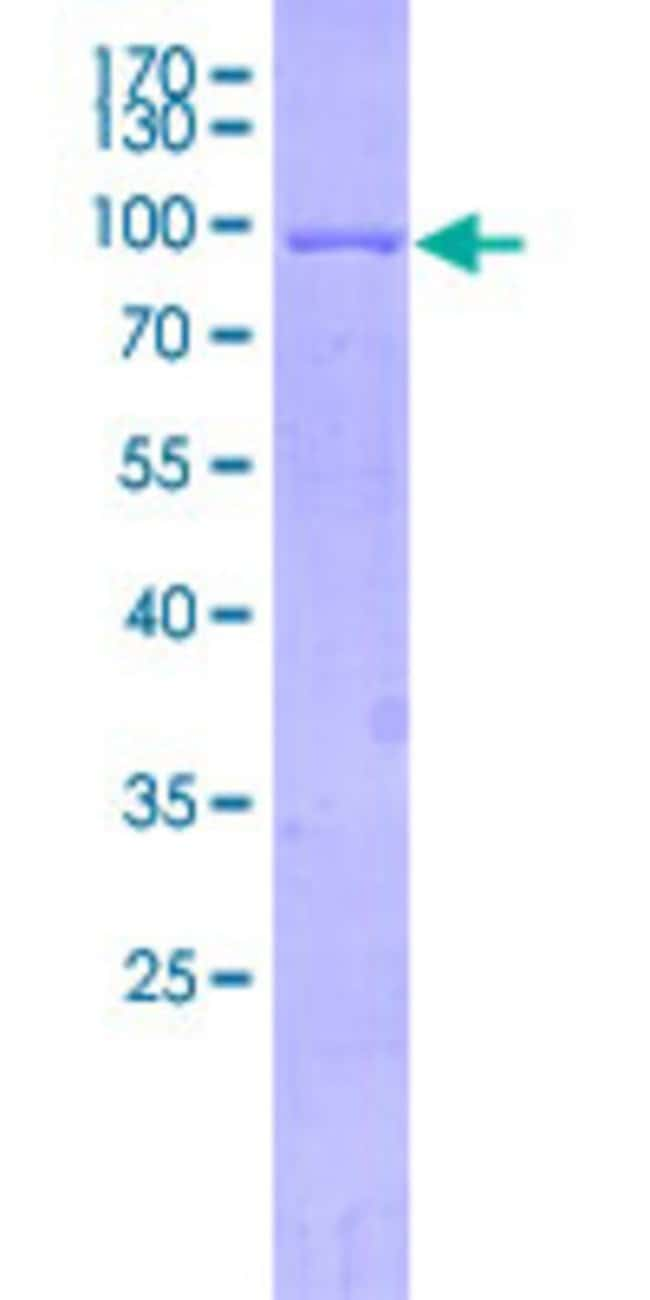 AbnovaHuman ALAS2 Full-length ORF (BAG35939.1, 1 a.a. - 587 a.a.) Recombinant
