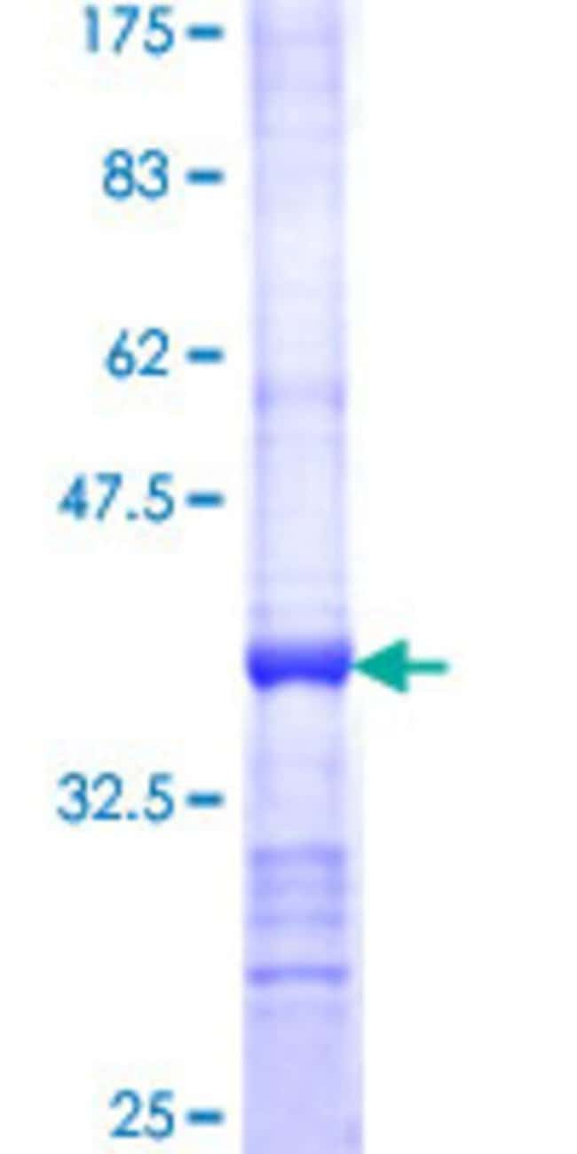 Abnova™Human ALAS2 Partial ORF (NP_000023, 1 a.a. - 100 a.a.) Recombinant Protein with GST-tag at N-terminal 25μg Abnova™Human ALAS2 Partial ORF (NP_000023, 1 a.a. - 100 a.a.) Recombinant Protein with GST-tag at N-terminal