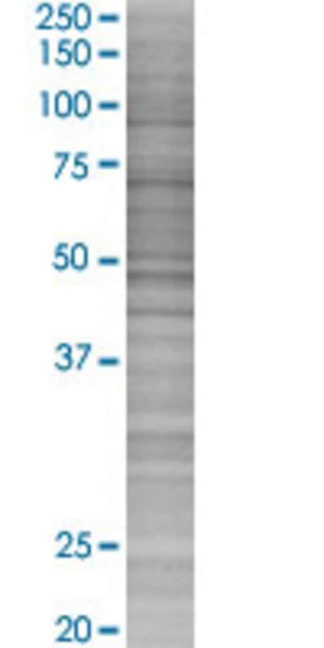 AbnovaALB 293T Cell Transient Overexpression Lysate (Denatured) 100μL:Protein