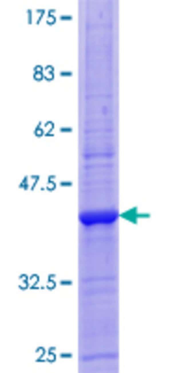 AbnovaHuman ALCAM Full-length ORF (AAH57809.1, 1 a.a. - 133 a.a.) Recombinant