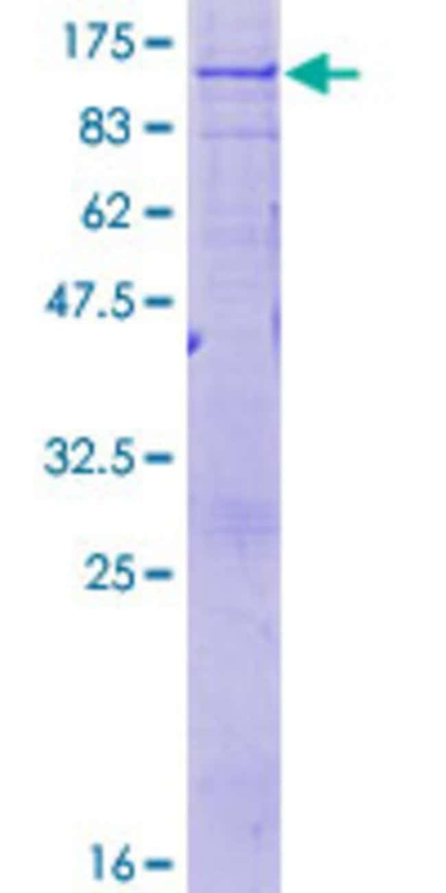 Abnova™Human ABCD1 Full-length ORF (NP_000024.2, 1 a.a. - 745 a.a.) Recombinant Protein with GST-tag at N-terminal 25μg Abnova™Human ABCD1 Full-length ORF (NP_000024.2, 1 a.a. - 745 a.a.) Recombinant Protein with GST-tag at N-terminal