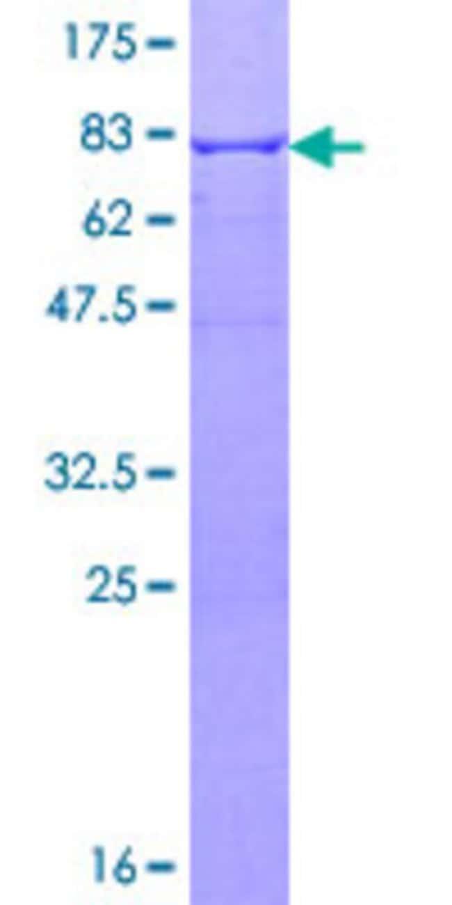AbnovaHuman ALDH1A1 Full-length ORF (NP_000680.2, 1 a.a. - 501 a.a.) Recombinant