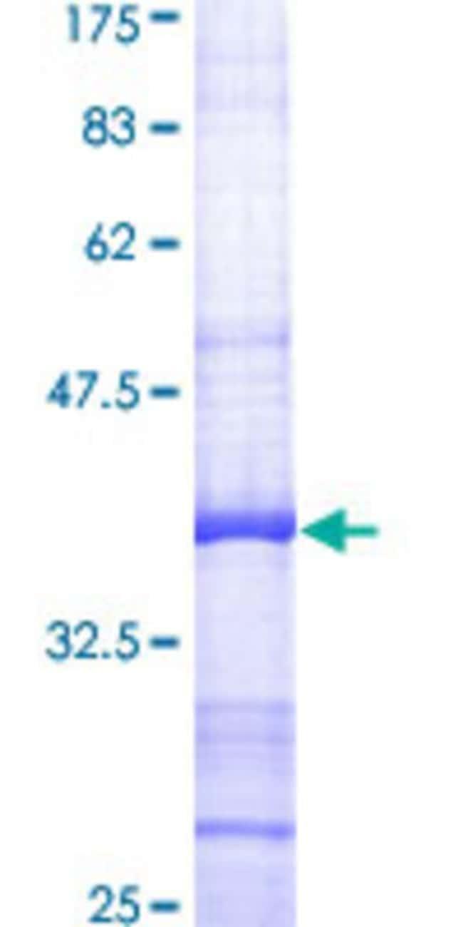 AbnovaHuman AKR1B1 Partial ORF (AAH10391, 217 a.a. - 316 a.a.) Recombinant