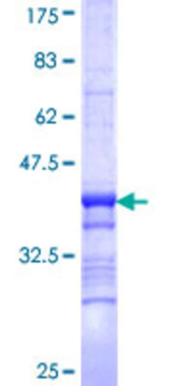 Abnova™Human ALK Partial ORF (NP_004295, 251 a.a. - 350 a.a.) Recombinant Protein with GST-tag at N-terminal 25μg Abnova™Human ALK Partial ORF (NP_004295, 251 a.a. - 350 a.a.) Recombinant Protein with GST-tag at N-terminal