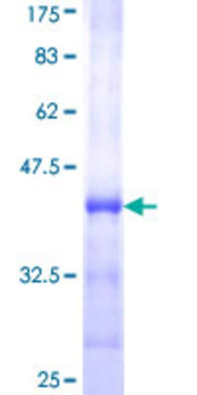 Abnova™Human ALOX12 Partial ORF (NP_000688, 564 a.a. - 663 a.a.) Recombinant Protein with GST-tag at N-terminal 10μg Abnova™Human ALOX12 Partial ORF (NP_000688, 564 a.a. - 663 a.a.) Recombinant Protein with GST-tag at N-terminal