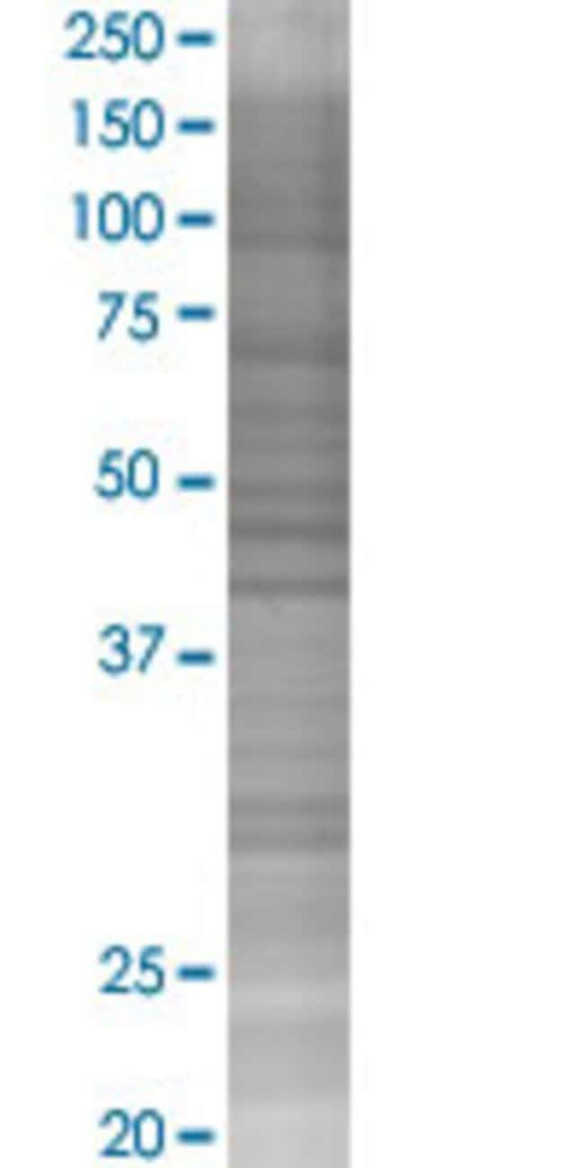 AbnovaALOX12 293T Cell Transient Overexpression Lysate (Denatured) 100μL:Protein