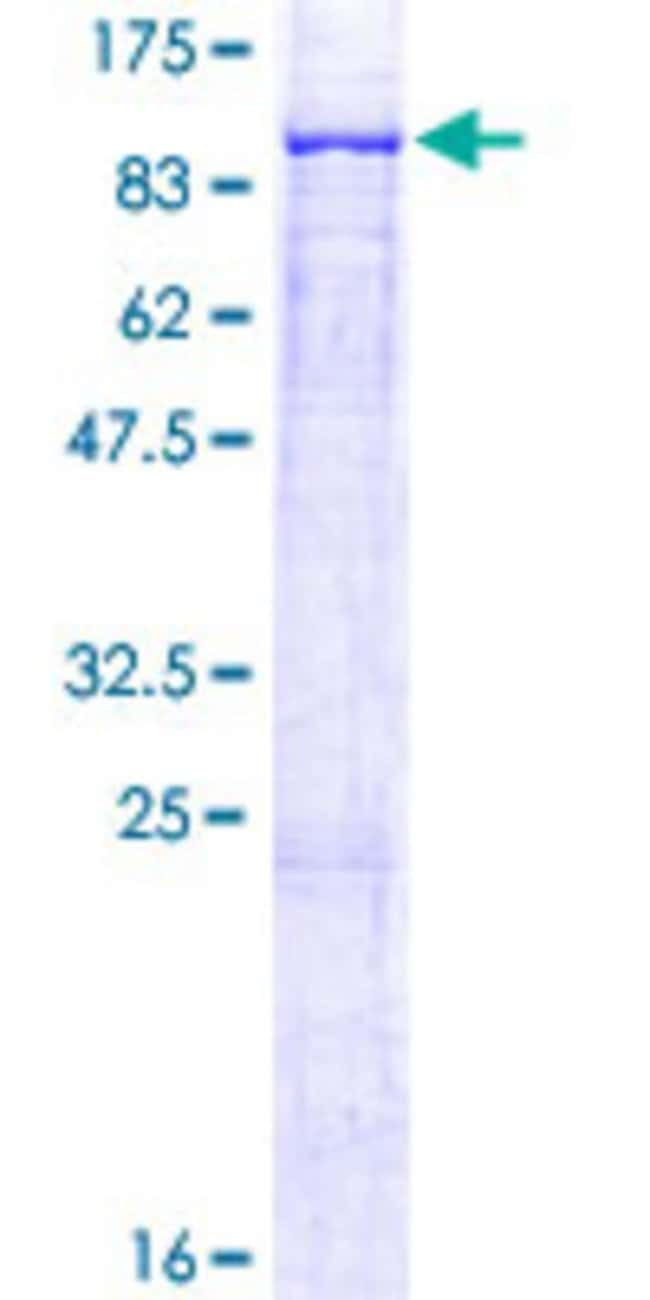 Abnova™Human ALOX12B Full-length ORF (NP_001130.1, 1 a.a. - 701 a.a.) Recombinant Protein with GST-tag at N-terminal 10μg Abnova™Human ALOX12B Full-length ORF (NP_001130.1, 1 a.a. - 701 a.a.) Recombinant Protein with GST-tag at N-terminal