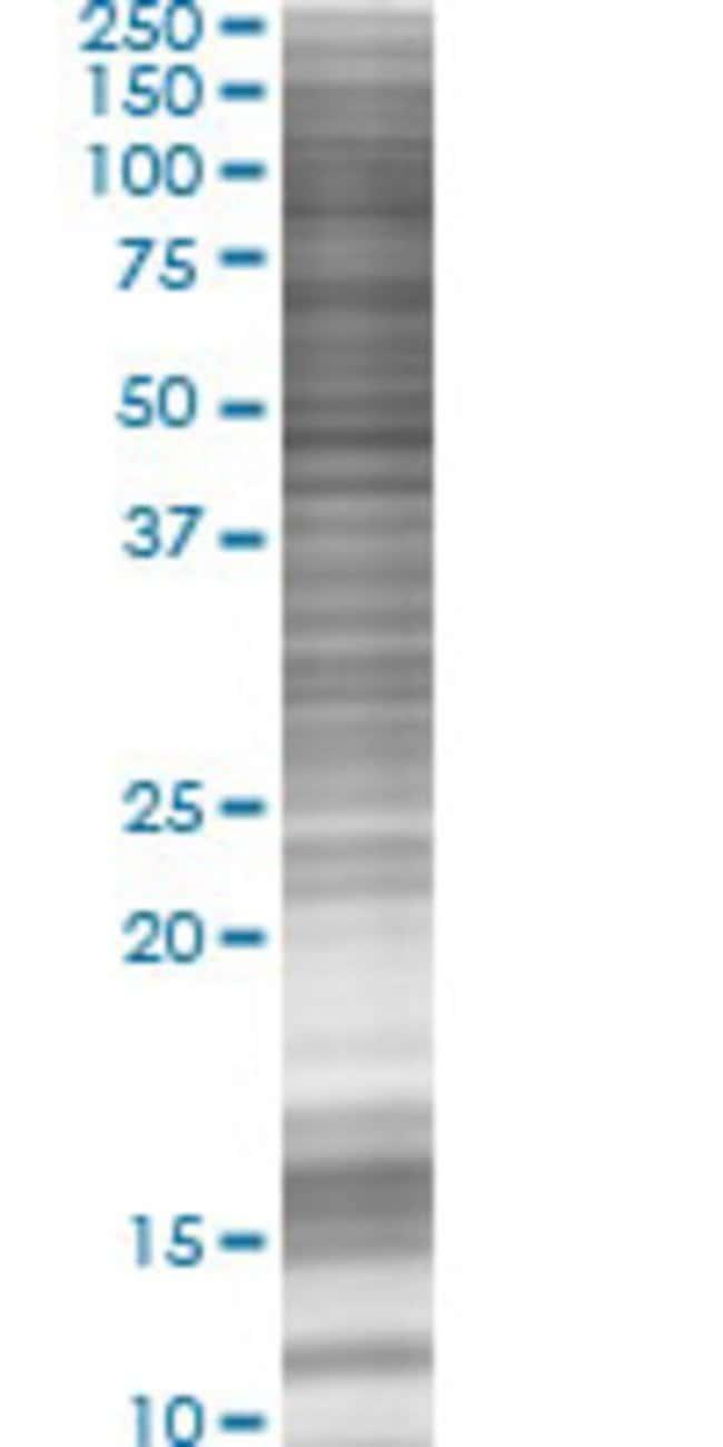 AbnovaALOX15 293T Cell Transient Overexpression Lysate (Denatured) 100μL:Protein
