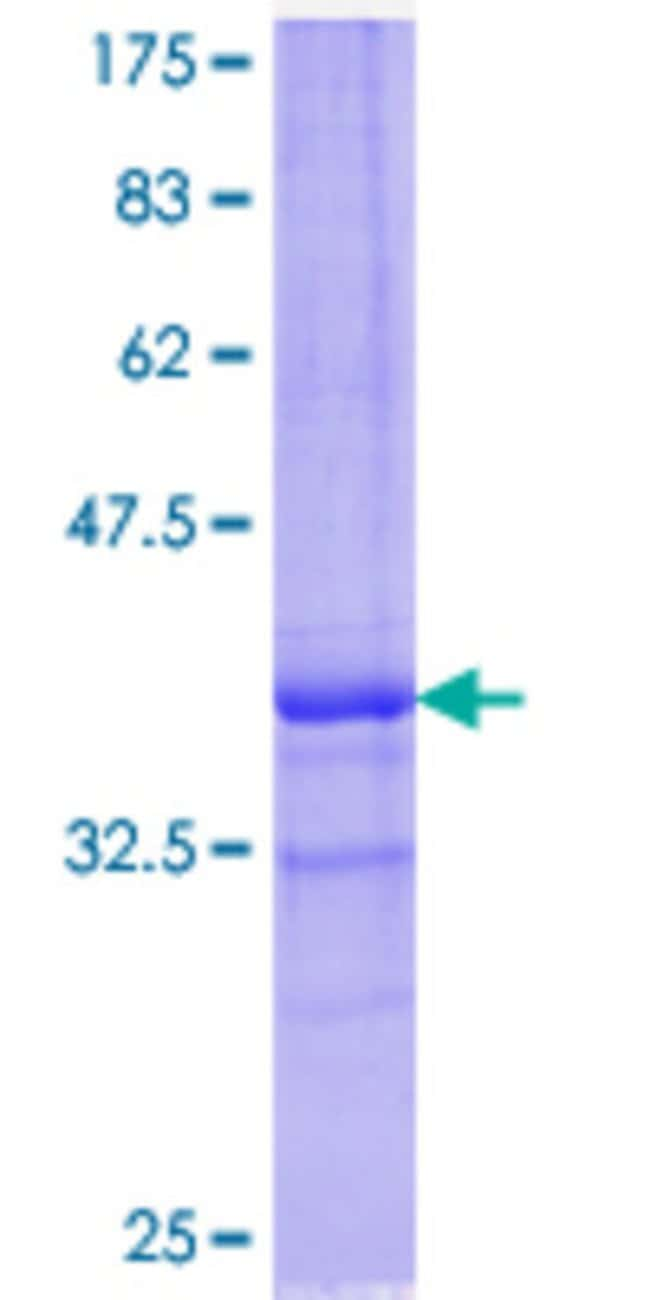 Abnova™Human ALOX15B Partial ORF (AAH35217.1, 181 a.a. - 280 a.a.) Recombinant Protein with GST-tag at N-terminal 25μg Abnova™Human ALOX15B Partial ORF (AAH35217.1, 181 a.a. - 280 a.a.) Recombinant Protein with GST-tag at N-terminal