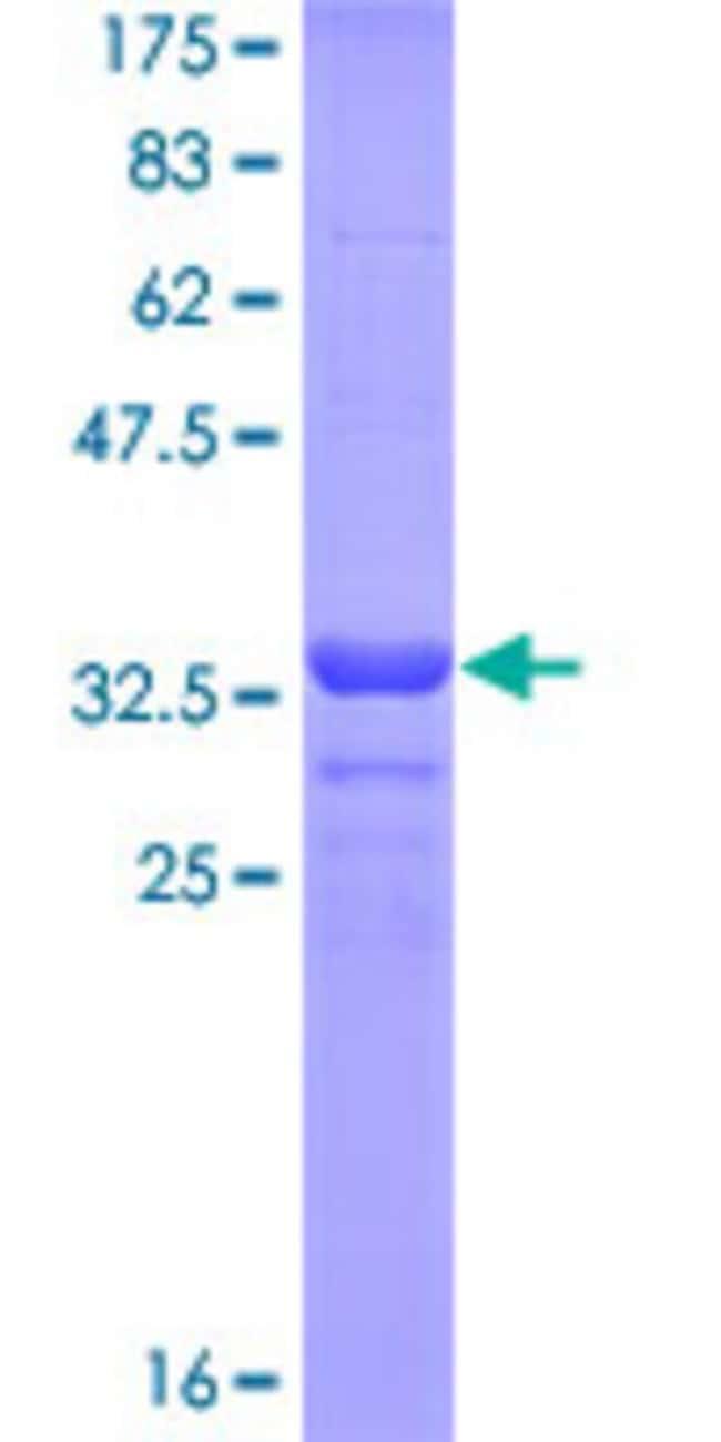 AbnovaHuman ALPI Partial ORF (NP_001622, 74 a.a. - 162 a.a.) Recombinant
