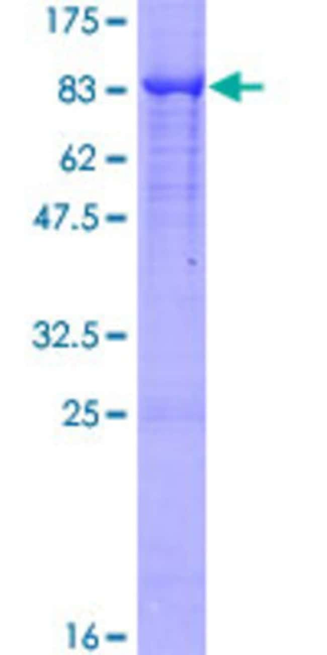 Abnova™Human ALPP Full-length ORF (NP_001623.3, 1 a.a. - 535 a.a.) Recombinant Protein with GST-tag at N-terminal 25μg Abnova™Human ALPP Full-length ORF (NP_001623.3, 1 a.a. - 535 a.a.) Recombinant Protein with GST-tag at N-terminal