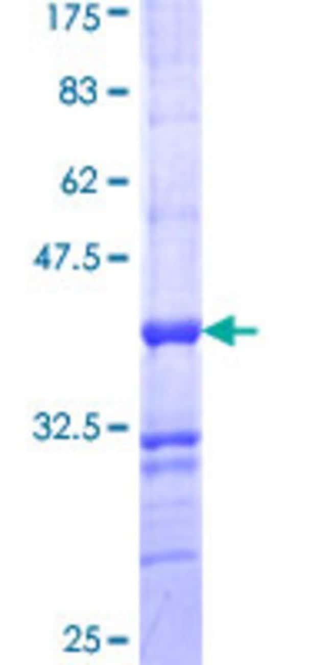 AbnovaHuman ALPPL2 Partial ORF (NP_112603, 365 a.a. - 454 a.a.) Recombinant
