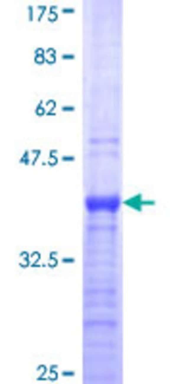 AbnovaHuman ALX3 Partial ORF (NP_006483, 150 a.a. - 249 a.a.) Recombinant