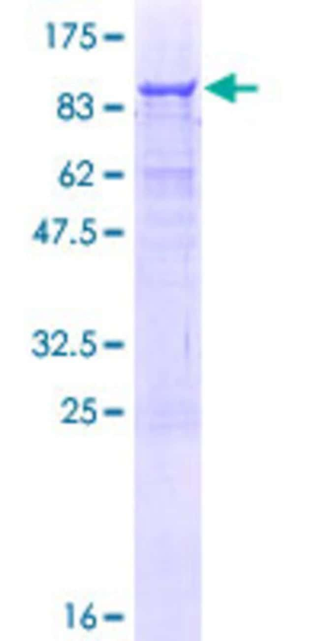 Abnova™Human AMBN Full-length ORF (NP_057603.1, 1 a.a. - 447 a.a.) Recombinant Protein with GST-tag at N-terminal 10μg Abnova™Human AMBN Full-length ORF (NP_057603.1, 1 a.a. - 447 a.a.) Recombinant Protein with GST-tag at N-terminal