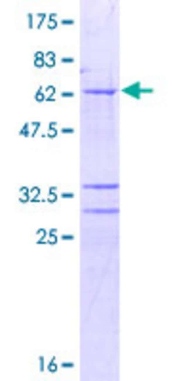 AbnovaHuman AMD1 Full-length ORF (NP_001625.2, 1 a.a. - 334 a.a.) Recombinant