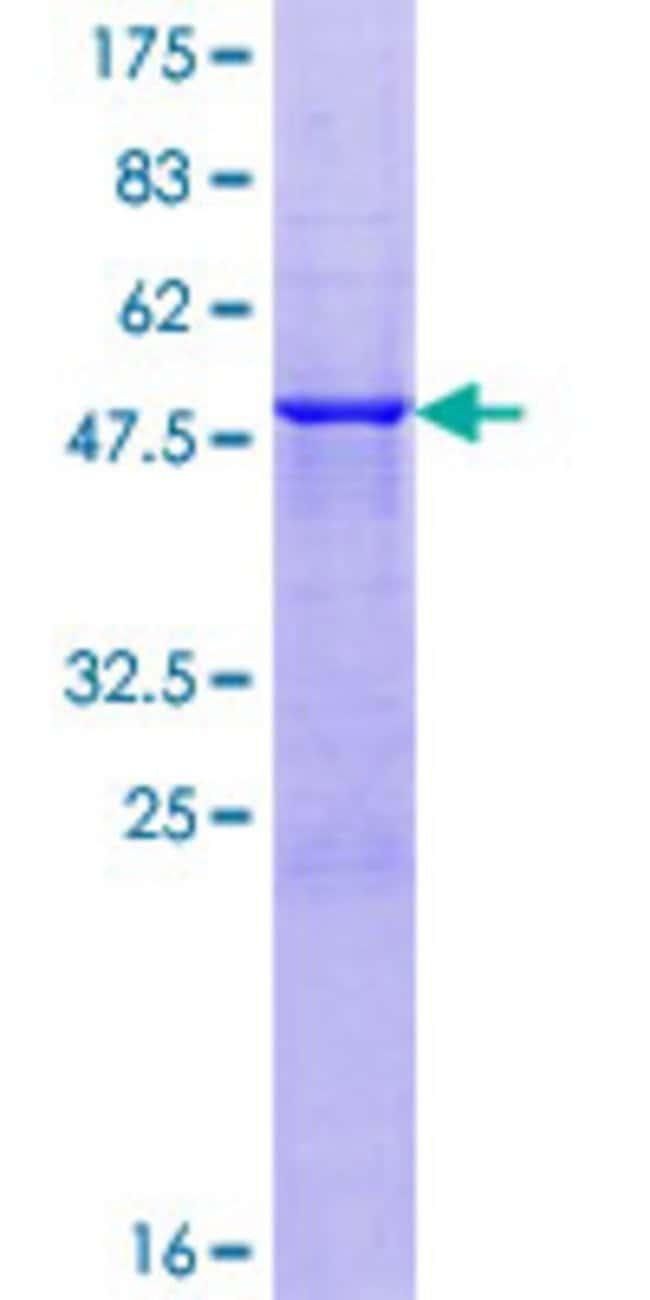 AbnovaHuman AMELX Full-length ORF (NP_001133.1, 1 a.a. - 191 a.a.) Recombinant