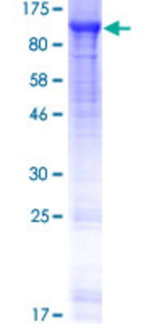 Abnova™Human AMPD1 Full-length ORF (AAI41601.1, 1 a.a. - 747 a.a.) Recombinant Protein with GST-tag at N-terminal 10μg Abnova™Human AMPD1 Full-length ORF (AAI41601.1, 1 a.a. - 747 a.a.) Recombinant Protein with GST-tag at N-terminal