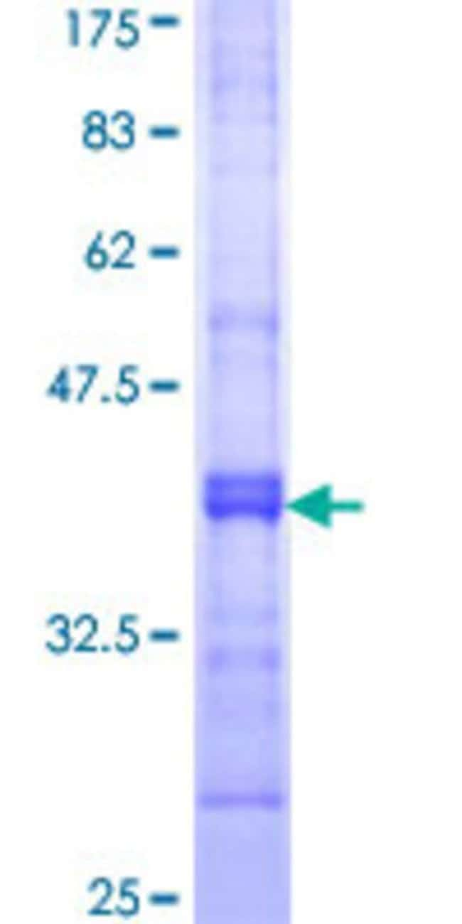 Abnova™Human AMPD2 Partial ORF (NP_631895, 86 a.a. - 185 a.a.) Recombinant Protein with GST-tag at N-terminal 10μg Abnova™Human AMPD2 Partial ORF (NP_631895, 86 a.a. - 185 a.a.) Recombinant Protein with GST-tag at N-terminal