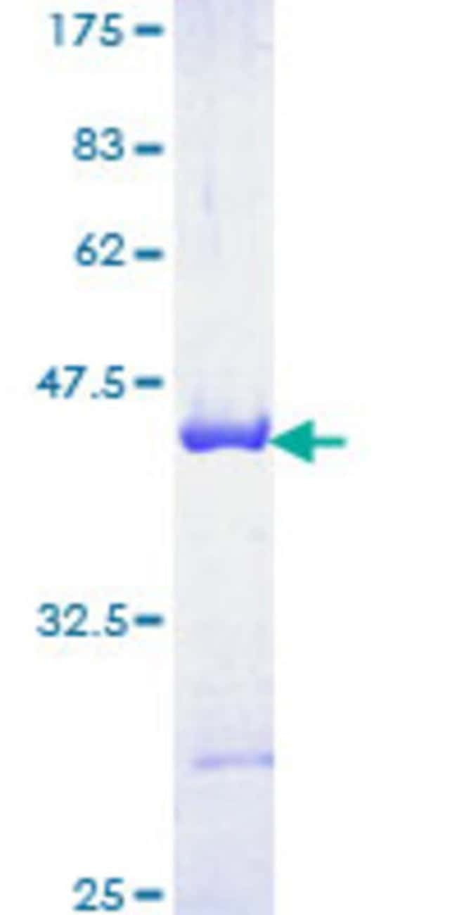 Abnova™Human BIN1 Partial ORF (NP_004296, 355 a.a. - 454 a.a.) Recombinant Protein with GST-tag at N-terminal 10μg Abnova™Human BIN1 Partial ORF (NP_004296, 355 a.a. - 454 a.a.) Recombinant Protein with GST-tag at N-terminal