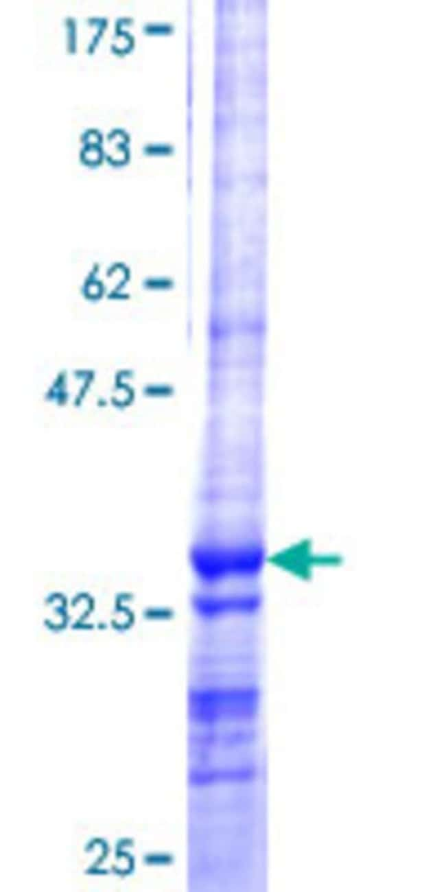 AbnovaHuman AMY1A Partial ORF (NP_001008222, 172 a.a. - 245 a.a.) Recombinant