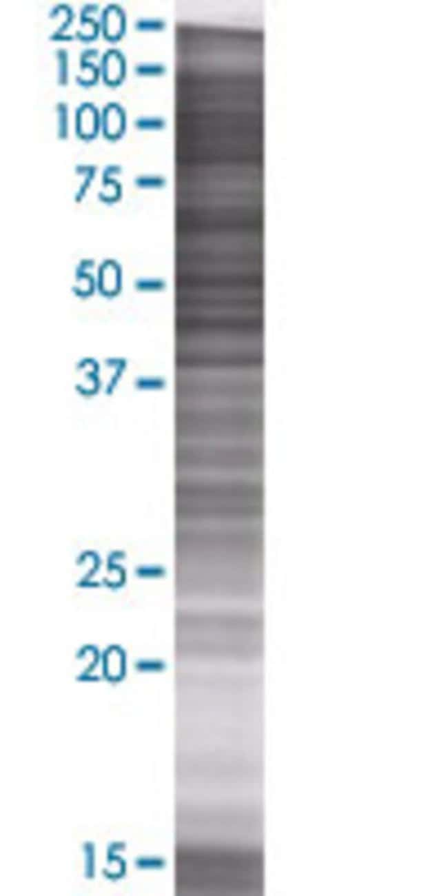 AbnovaAMY1B 293T Cell Transient Overexpression Lysate (Denatured) 100μL:Protein