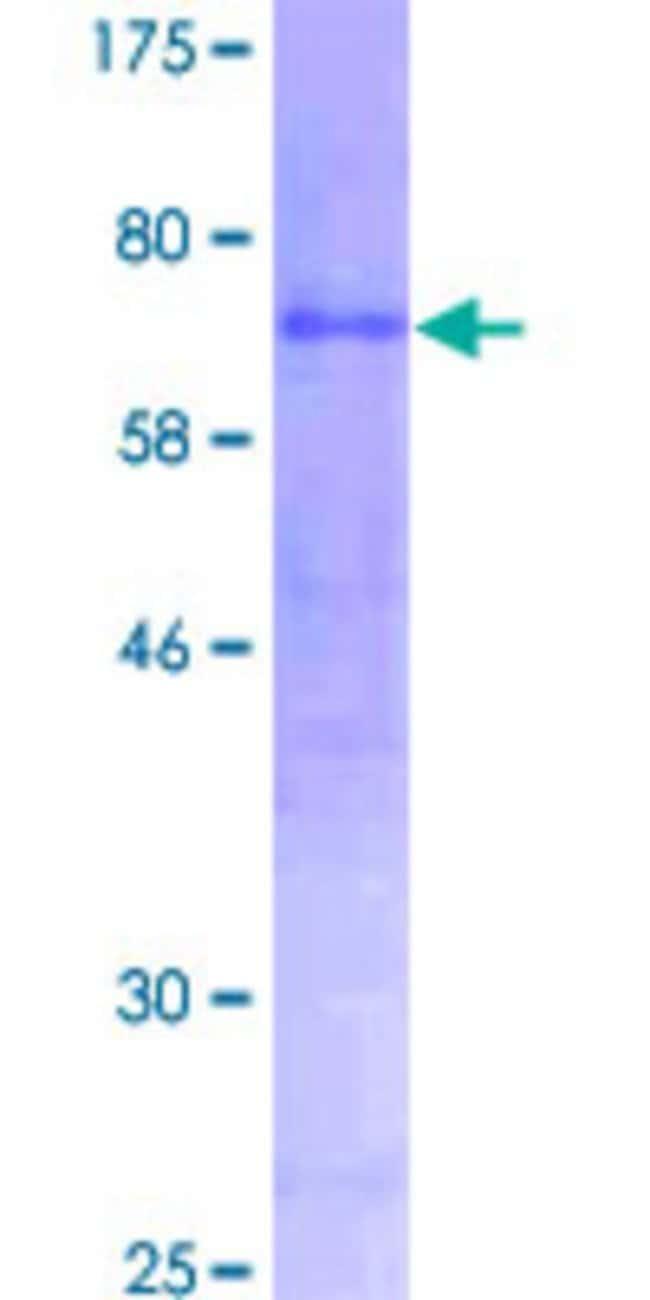 AbnovaHuman AMY2A Full-length ORF (NP_000690.1, 1 a.a. - 511 a.a.) Recombinant