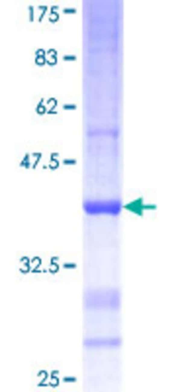 AbnovaHuman AMY2B Partial ORF (NP_066188, 19 a.a. - 117 a.a.) Recombinant