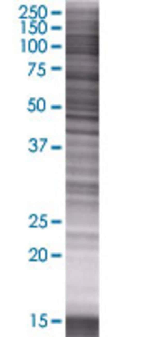 AbnovaAMY2B 293T Cell Transient Overexpression Lysate (Denatured) 100μL:Protein