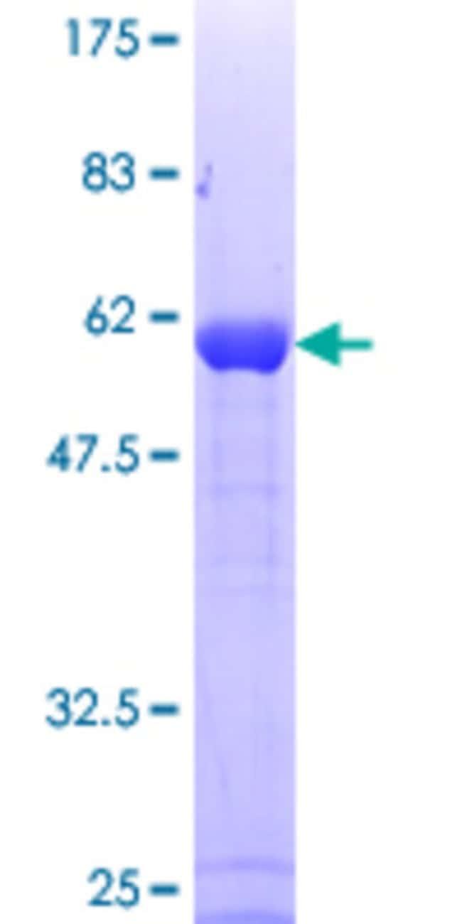 AbnovaHuman ANXA1 Full-length ORF (NP_000691.1, 1 a.a. - 346 a.a.) Recombinant