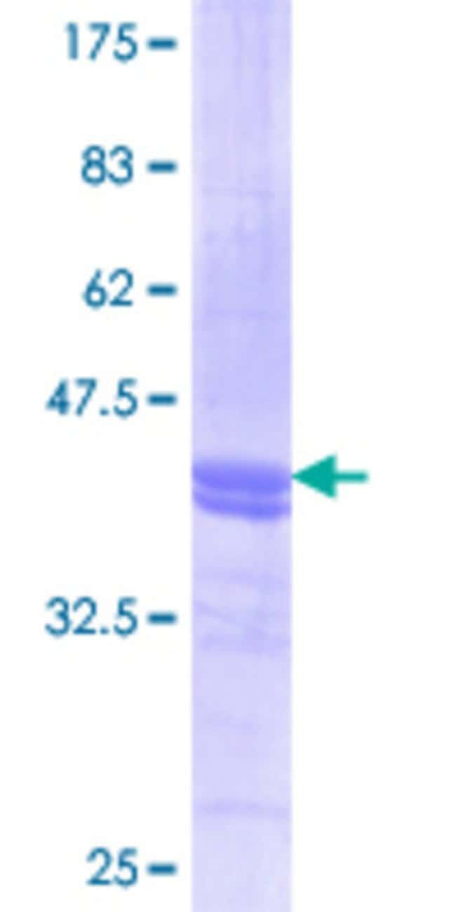 AbnovaHuman ANXA2 Partial ORF (AAH09564.1, 186 a.a. - 268 a.a.) Recombinant