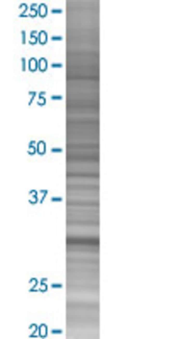 AbnovaANXA4 293T Cell Transient Overexpression Lysate (Denatured) 100μL:Protein