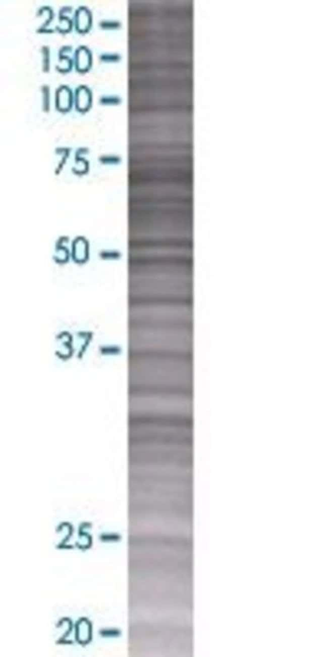 AbnovaAOAH 293T Cell Transient Overexpression Lysate (Denatured) 100μL:Protein