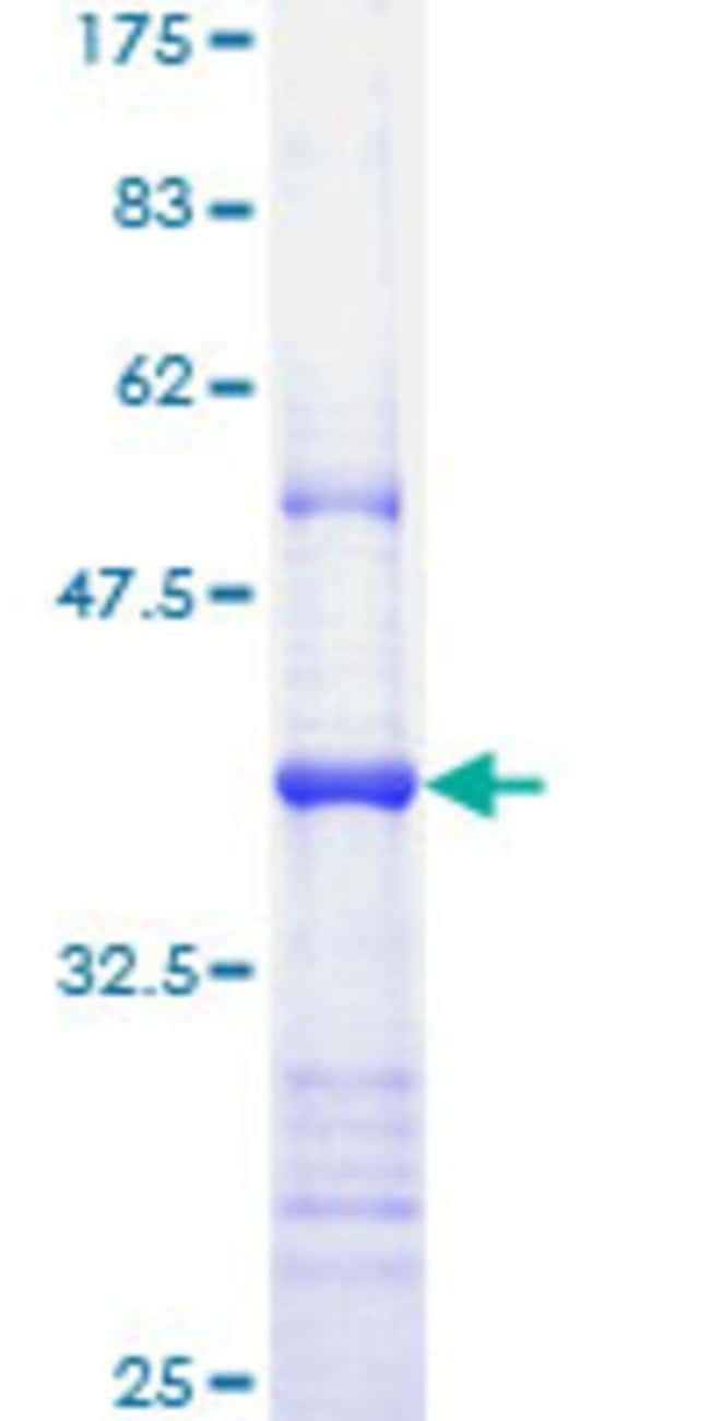 AbnovaHuman APAF1 Partial ORF (NP_037361, 1138 a.a. - 1237 a.a.) Recombinant
