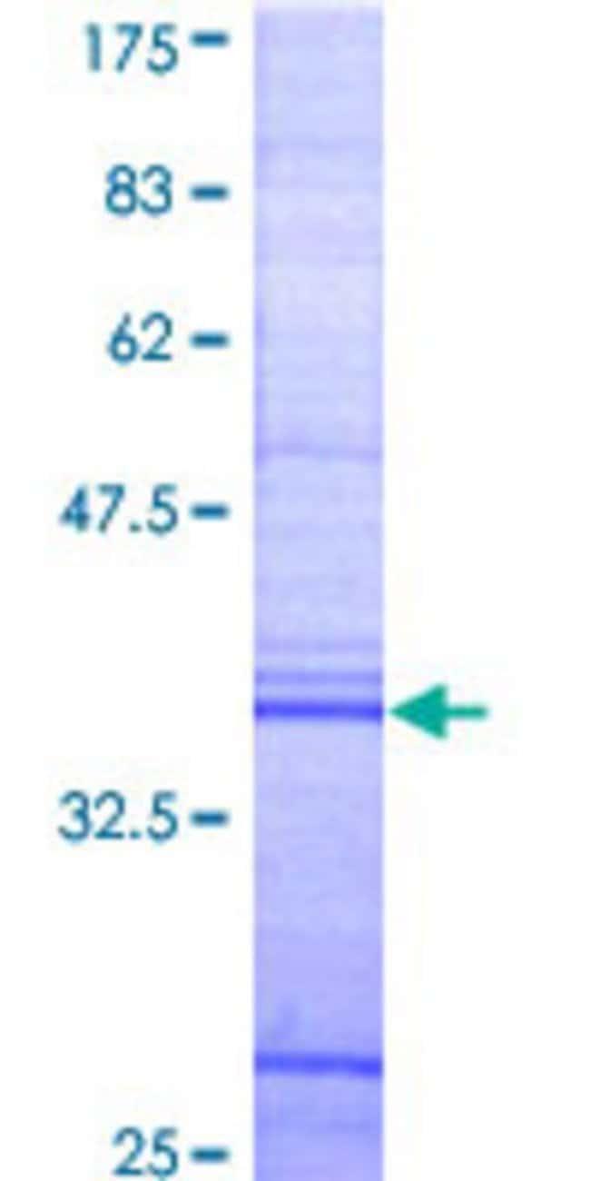 Abnova™Human APBB1 Partial ORF (AAH10854, 605 a.a. - 708 a.a.) Recombinant Protein with GST-tag at N-terminal 10μg Abnova™Human APBB1 Partial ORF (AAH10854, 605 a.a. - 708 a.a.) Recombinant Protein with GST-tag at N-terminal
