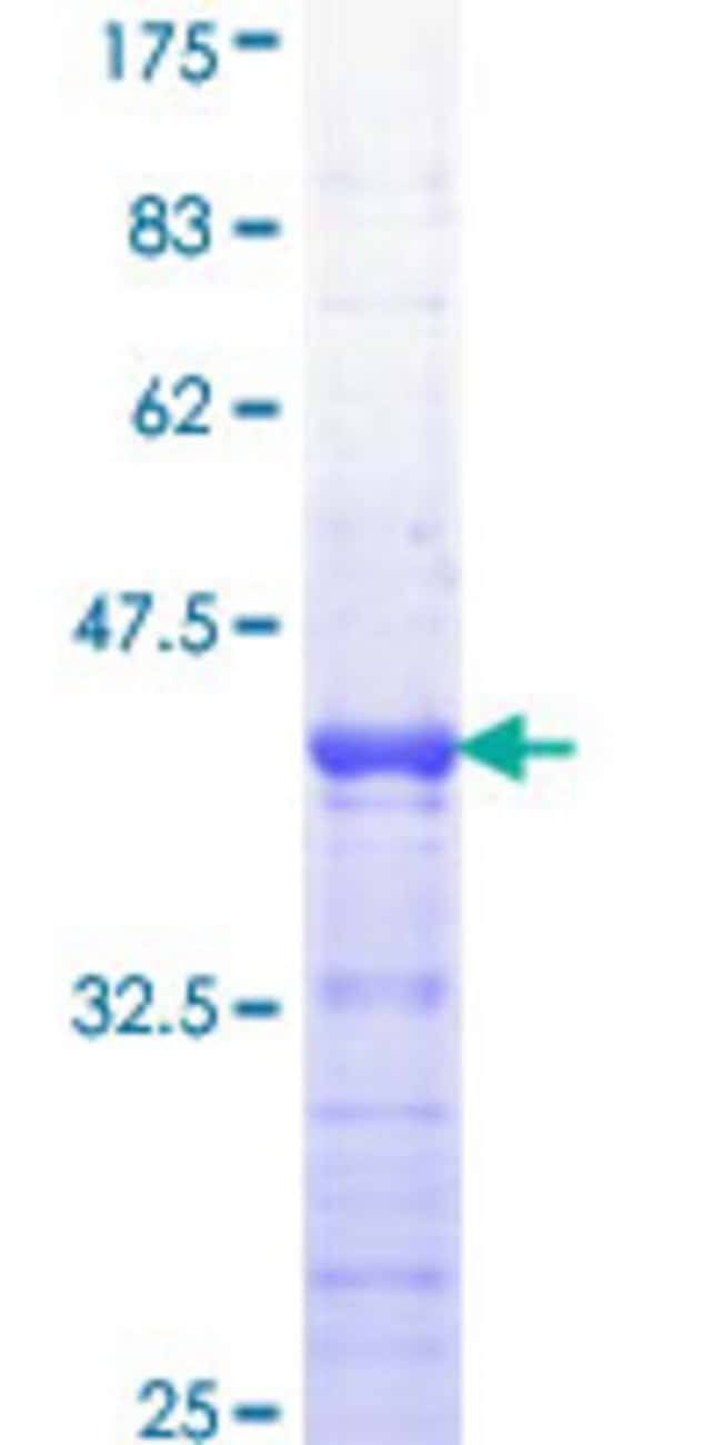 AbnovaHuman APC Partial ORF (NP_000029, 2744 a.a. - 2843 a.a.) Recombinant