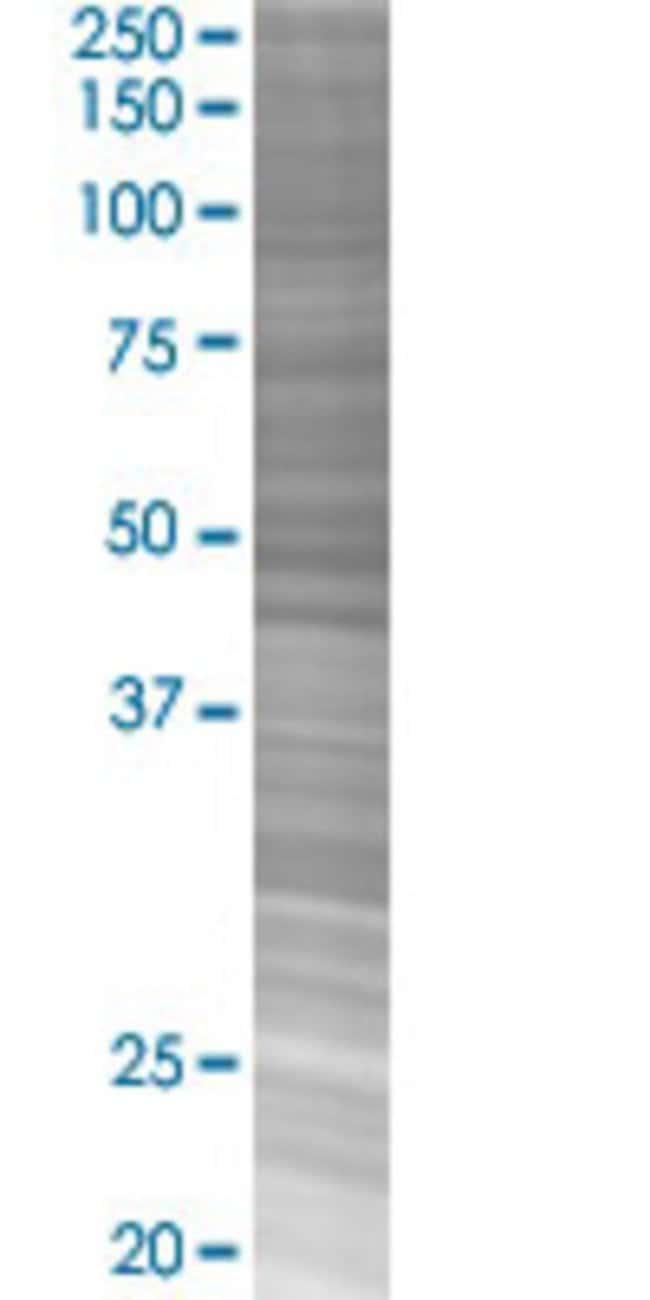 AbnovaAPC 293T Cell Transient Overexpression Lysate (Denatured) 100μL:Protein