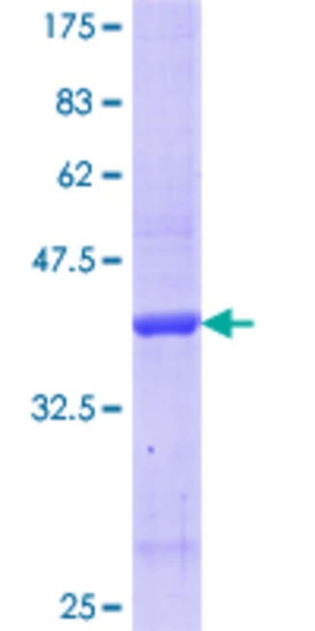 Abnova™Human APCS Partial ORF (AAH07058.1, 35 a.a. - 149 a.a.) Recombinant Protein with GST-tag at N-terminal 25μg Abnova™Human APCS Partial ORF (AAH07058.1, 35 a.a. - 149 a.a.) Recombinant Protein with GST-tag at N-terminal