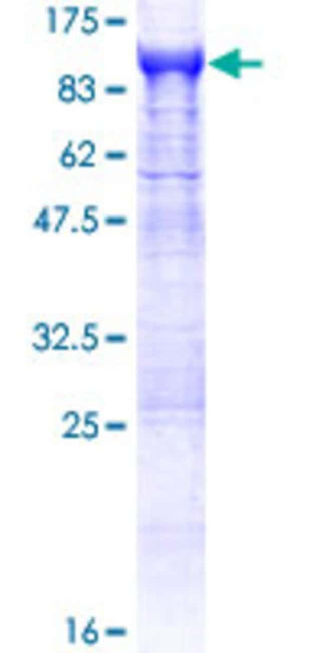Abnova™Human APEH Full-length ORF (NP_001631.3, 1 a.a. - 732 a.a.) Recombinant Protein with GST-tag at N-terminal 10μg Abnova™Human APEH Full-length ORF (NP_001631.3, 1 a.a. - 732 a.a.) Recombinant Protein with GST-tag at N-terminal