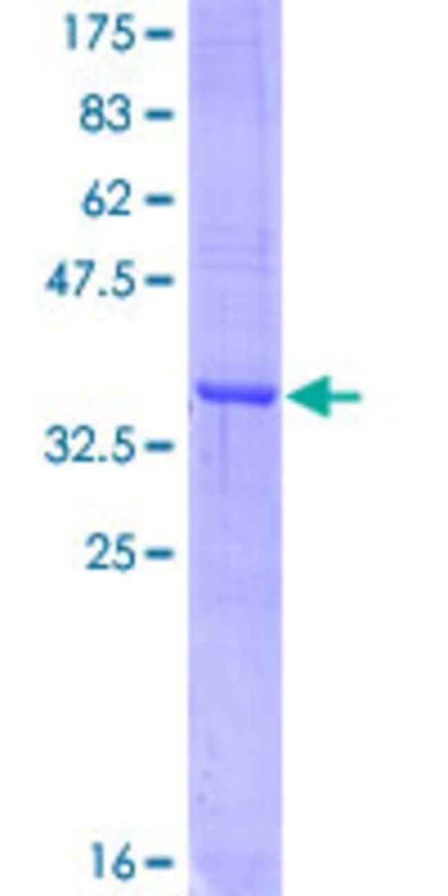 AbnovaHuman APLP1 Partial ORF (AAH12889, 523 a.a. - 625 a.a.) Recombinant