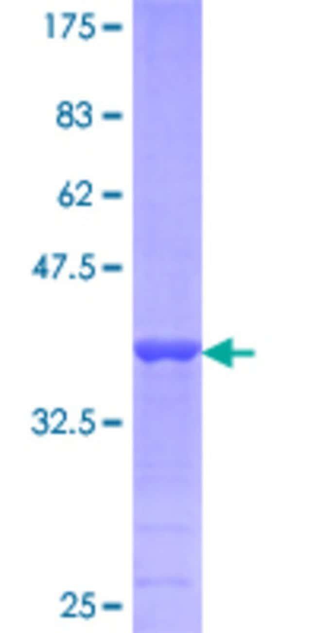 AbnovaHuman APOB Partial ORF (NP_000375.1, 28 a.a. - 127 a.a.) Recombinant