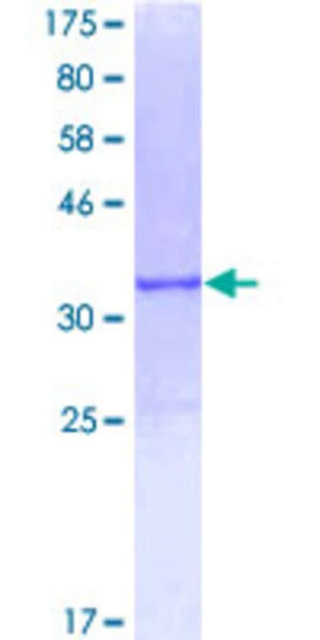 AbnovaHuman APOC2 Full-length ORF (ENSP00000252490, 1 a.a. - 101 a.a.)