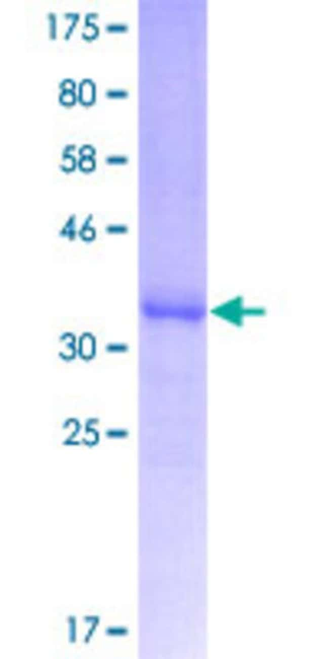 AbnovaHuman APOC3 Partial ORF (NP_000031.1, 21 a.a. - 99 a.a.) Recombinant