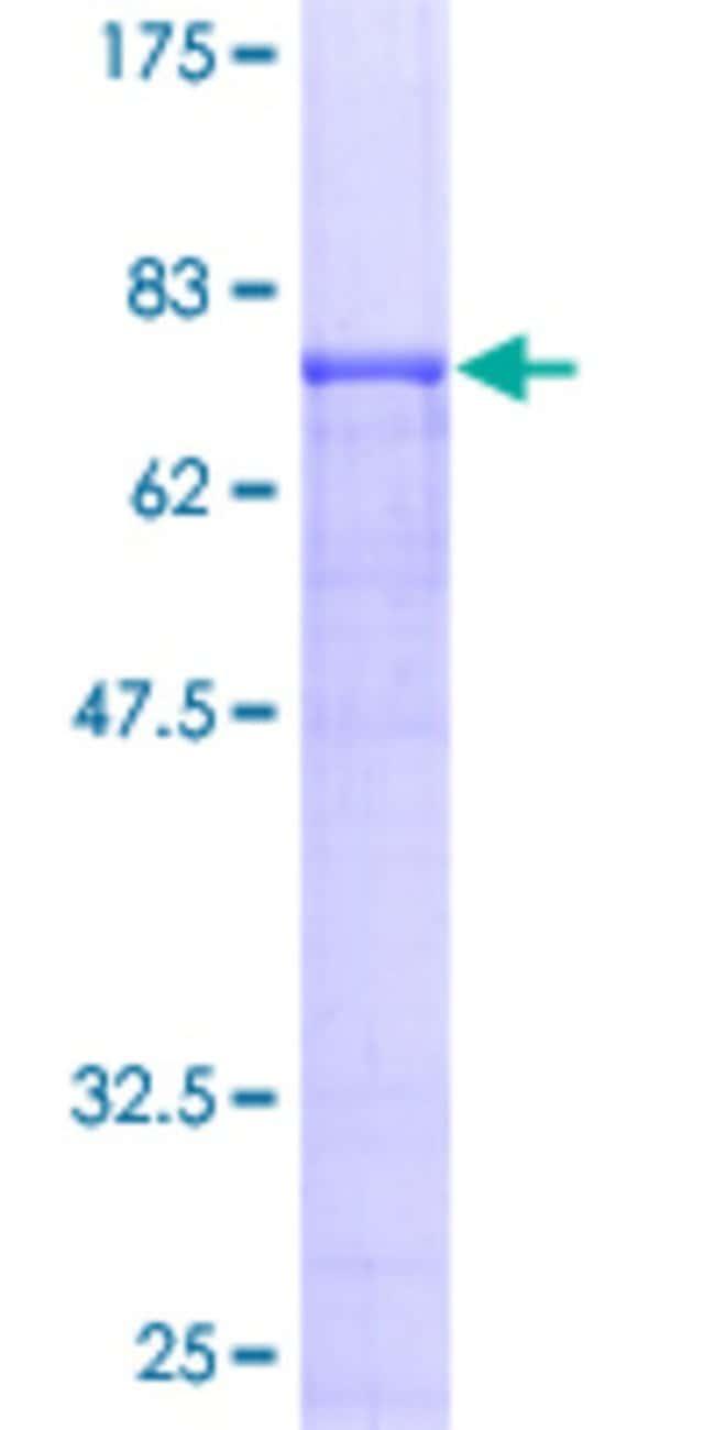 AbnovaHuman APP Full-length ORF (AAH04369, 1 a.a. - 305 a.a.) Recombinant