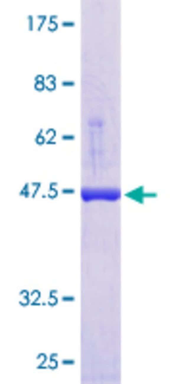 Abnova™Human APRT Full-length ORF (NP_000476.1, 1 a.a. - 180 a.a.) Recombinant Protein with GST-tag at N-terminal 10μg Abnova™Human APRT Full-length ORF (NP_000476.1, 1 a.a. - 180 a.a.) Recombinant Protein with GST-tag at N-terminal