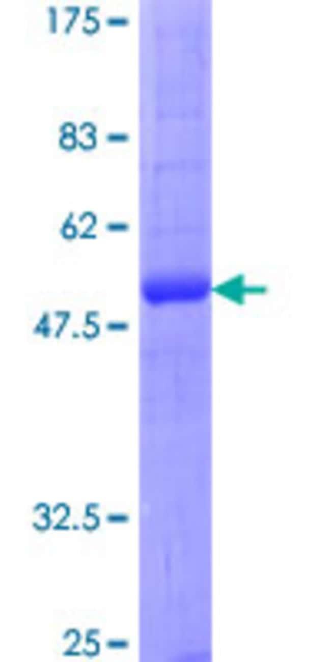 AbnovaHuman AQP2 Full-length ORF (NP_000477.1, 1 a.a. - 271 a.a.) Recombinant
